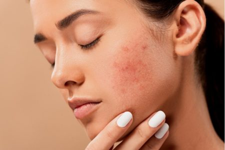 enlever-acne-cicatrices-acne